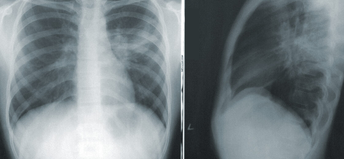 Front and Side X-Ray of Chest